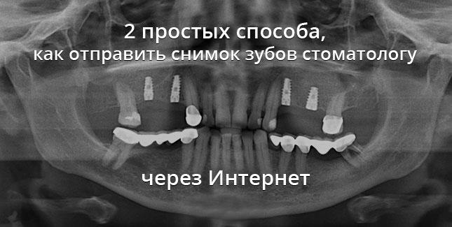 Инструкция по отправке снимков зубов стоматологу через интернет